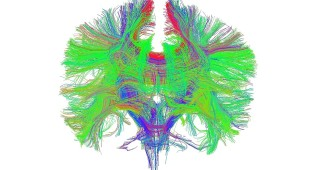 pot brain