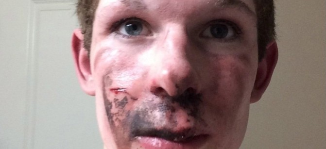 an-e-cigarette-exploded-in-an-alberta-teens-face-body-image-1453998844