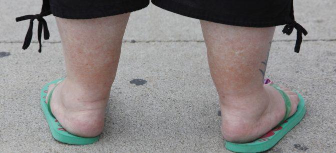 Eine uebergewichtige Frau steht am Mittwoch, 22. Juli 1009, am Alexanderplatz in Berlin. Fettleibigkeit, im Medizinischen Adipositas genannt, gilt als Volkskrankheit. (AP Photo/Franka Bruns) ---An obese woman visits Alexanderplatz in Berlin, Wednesday, July 22, 2009. (AP Photo/Franka Bruns)
